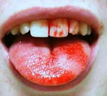 hemorragia bucal